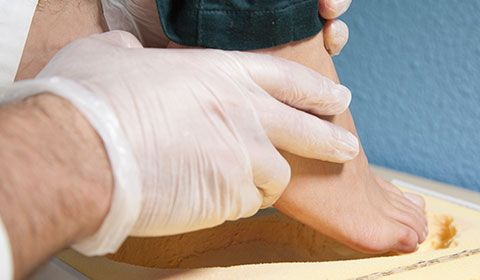 pedorthist fitting foot to mold for orthotic
