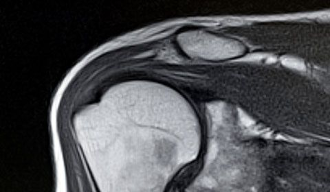 shoulder mri scan