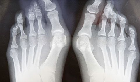 xray of feet with bunions